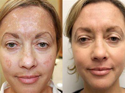 Cosmetic Dermatology Dr Josiane Lederman Md Dermatologist
