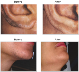 Dermatologist approved facial hair removal